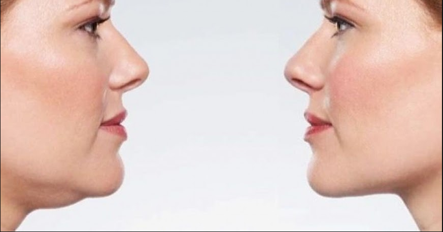 Loose Face Fat with the Best Surgery in Ludhiana
